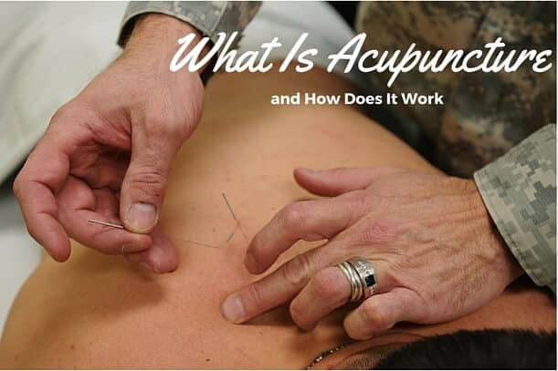 What Is Acupuncture and How Does It Work