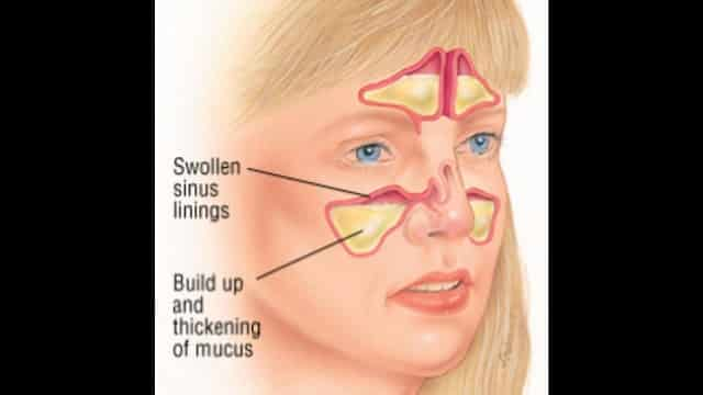 sinus problems and mucus