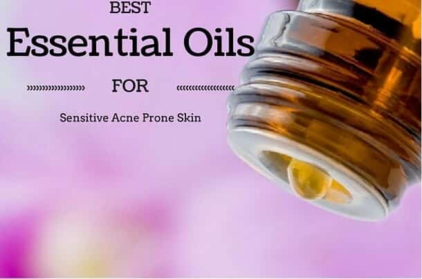 Best Essential Oils for Sensitive Acne Prone Skin