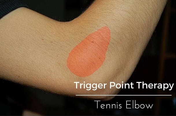 Trigger Point Therapy Tennis Elbow