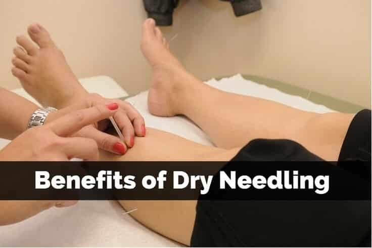 what is dry needling Trigger point dry needling is a physical therapy technique that decreases pain in your muscles pivot physical therapy's trained physical therapists offer dry.