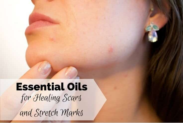 Essential Oils for Healing Scars and Stretch Marks