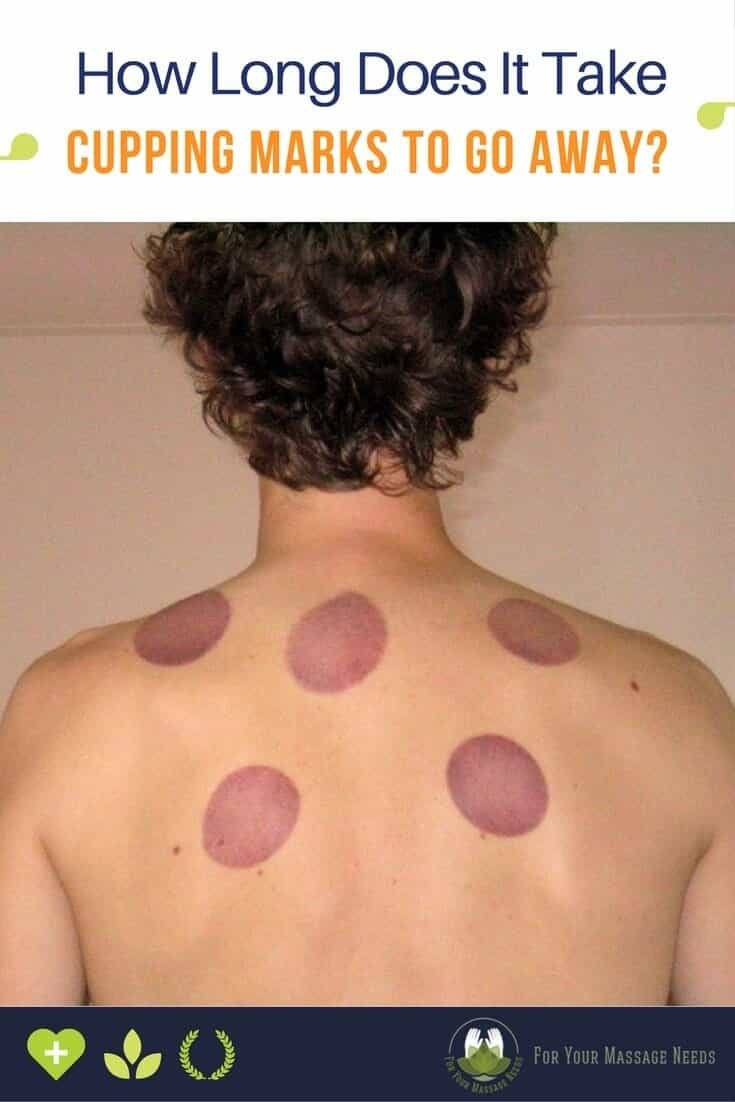 How Long Does It Take for Cupping Marks to Go Away