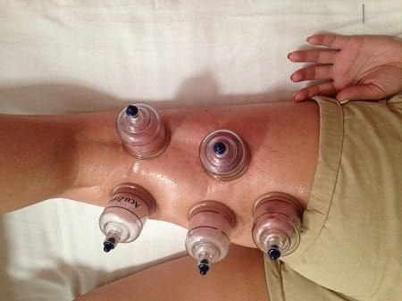 Cupping Massage Bruising Marks